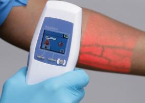 AccuVein equipment illuminates veins